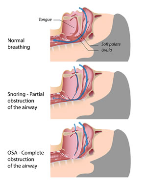 snoring- apnea-graphic